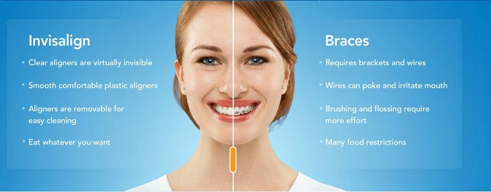Corson Dentistry Denver Braces-vs-Invisalign