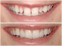 corson dentistry bonding