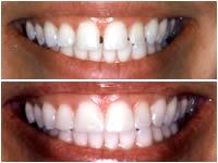 Corson Dentistry dental-bonding