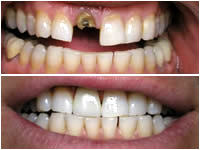 Corson Dentistry dental-crown