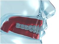 Corson Dentistry dentures