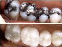 Corson Dentistry inlays-onlays