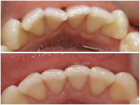 Corson Dentistry Denver invisalign