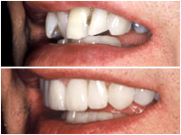 Corson Dentistry orthodontics