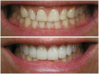 Corson Dentistry rejuvenation