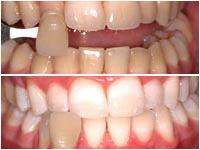 Corson Dentistry teeth-whitening