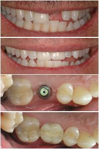 Corson Dentistry Denver dental implant